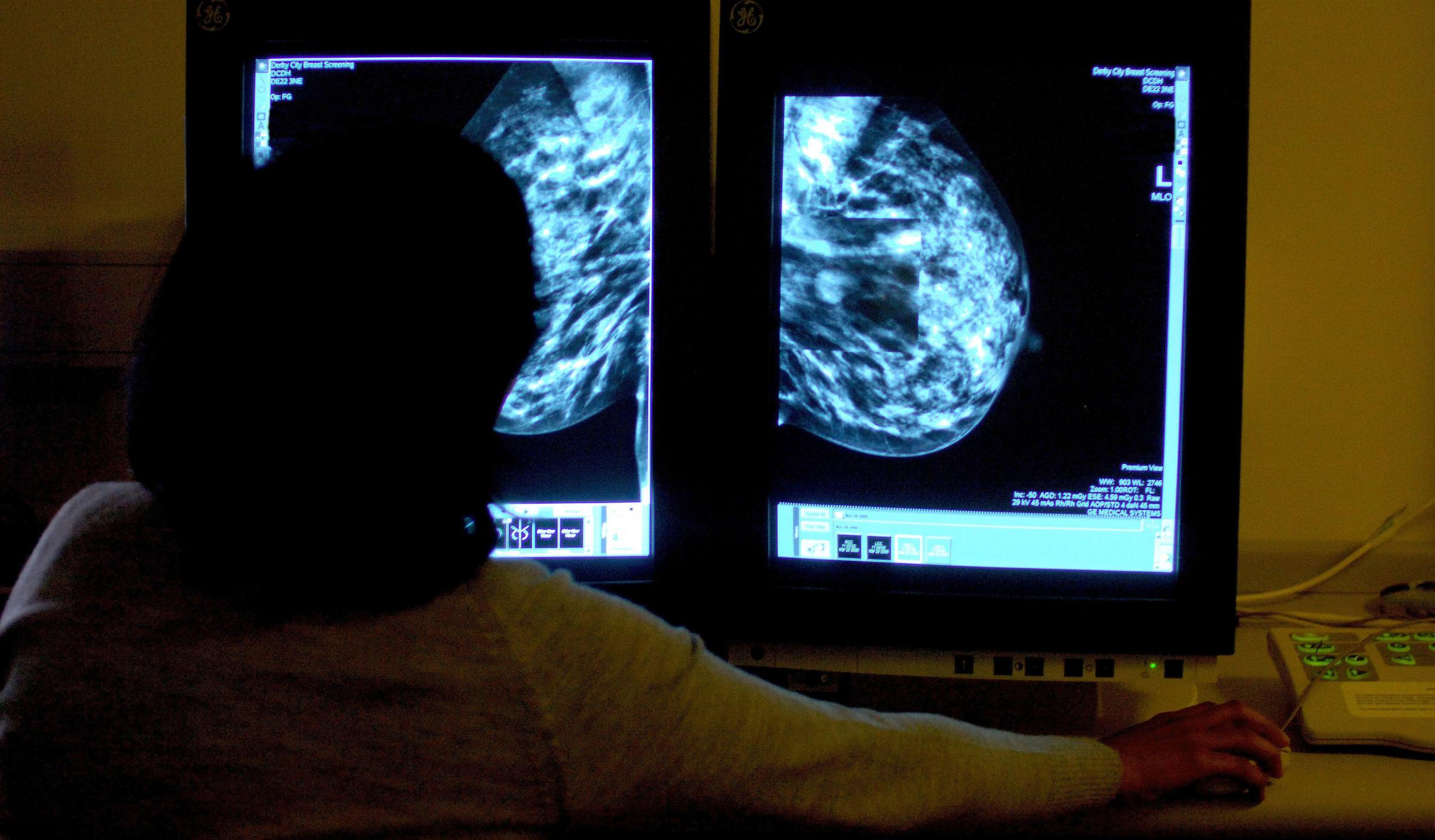 NHS approval for life-extending breast cancer drug